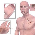 EFT stress relief tapping points